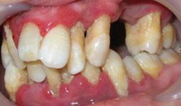 Parodontites Agressives