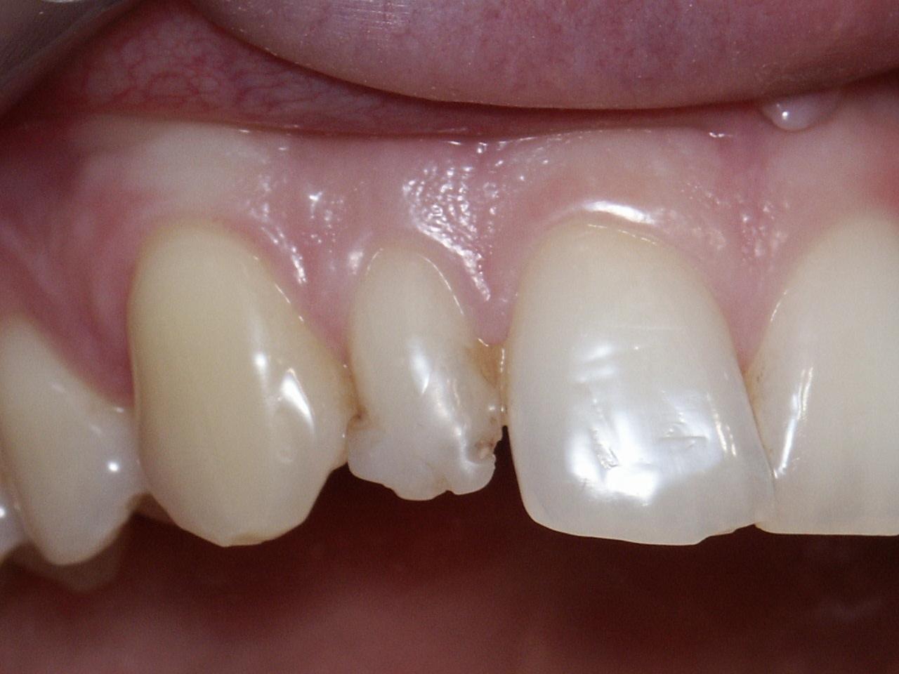 Dents sans facettes