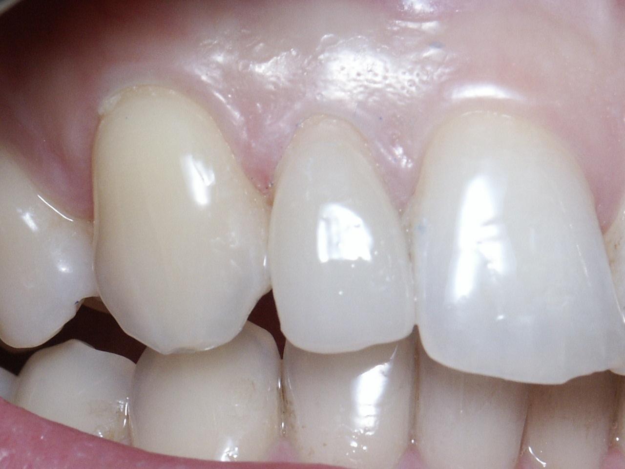 Dents avec facette