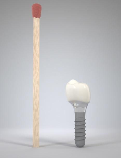 Implant dentaire à coté d'une alumette
