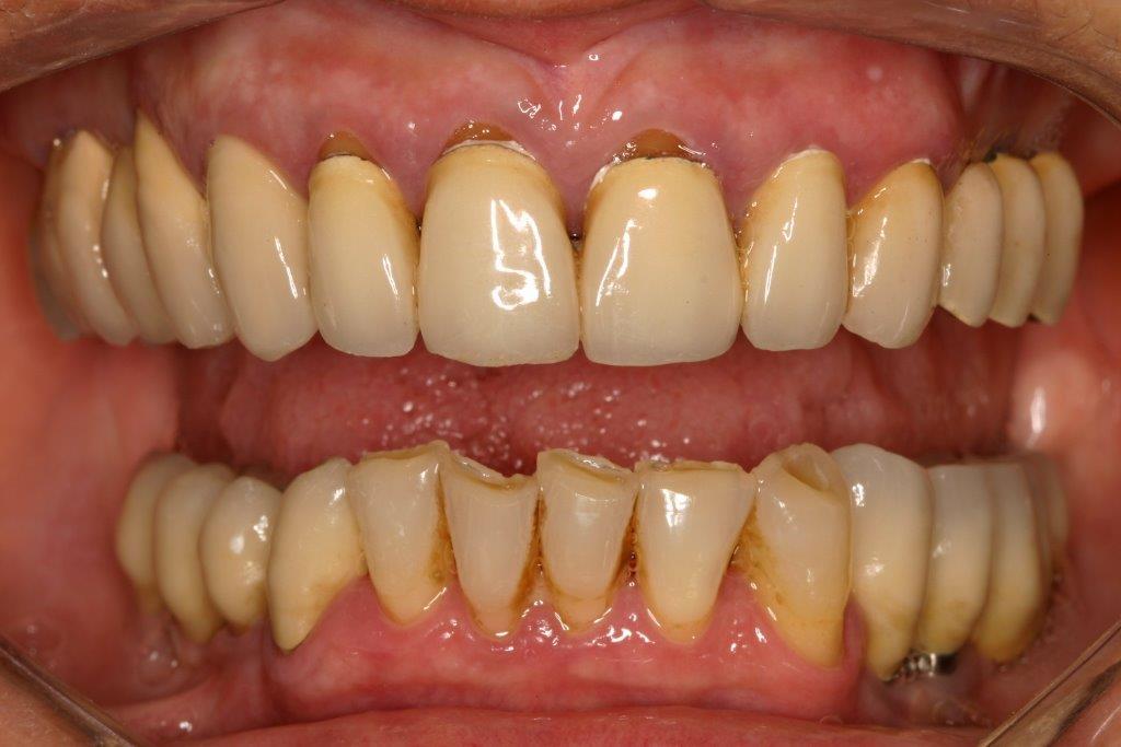 Parodontites chroniques
